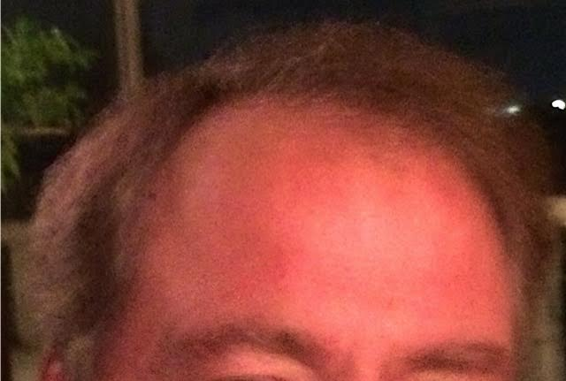 hair after hairprint